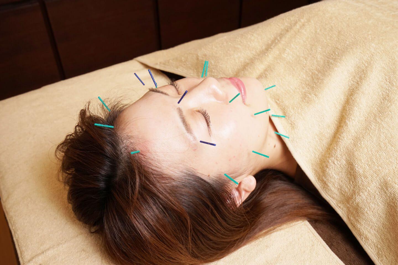 症状で選ぶ 美容鍼